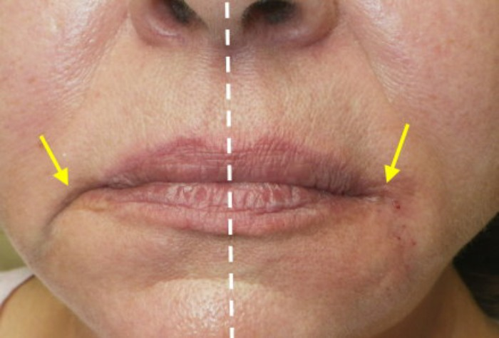 Corner of the Mouth Filler Model Treatment