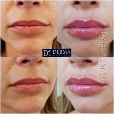 Lip Filler / Lip Augmentation - Derma Models