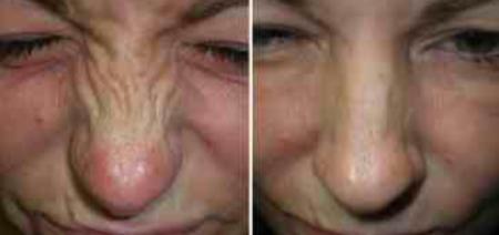 Bunny-Line-Anti-Wrinkle-Treatment
