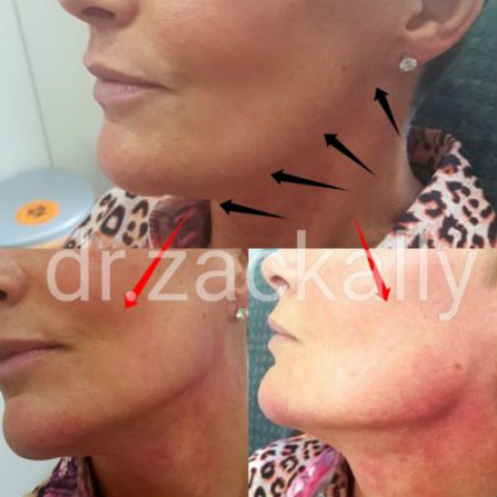 Jawline and Chin Filler - Derma Models