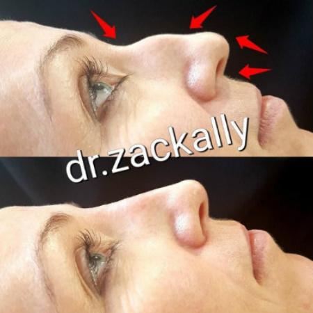 Nose-Filler2