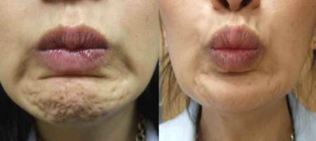 Pebble-Chin-Anti-Wrinkle-Treatment