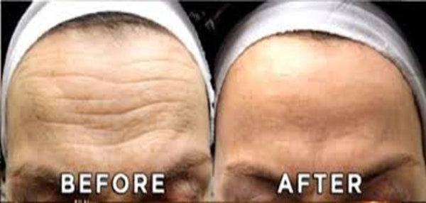 Forehead Model Treatment