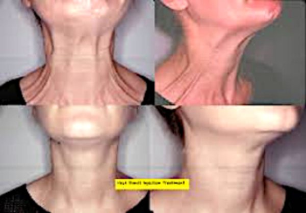 Neck & Platysmal Band Model Treatment