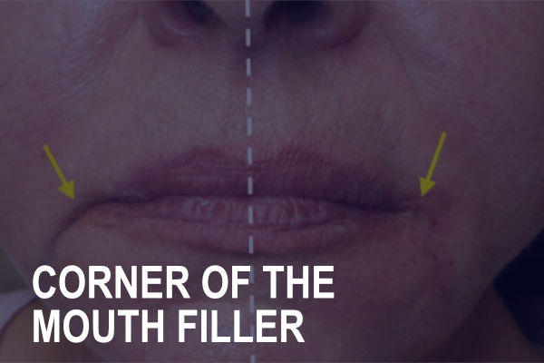 Corner of the Mouth Filler Treatment