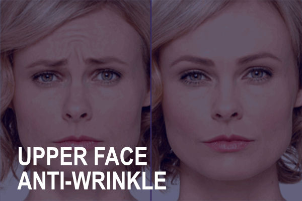 Upper Face Anti-Wrinkle Treatment