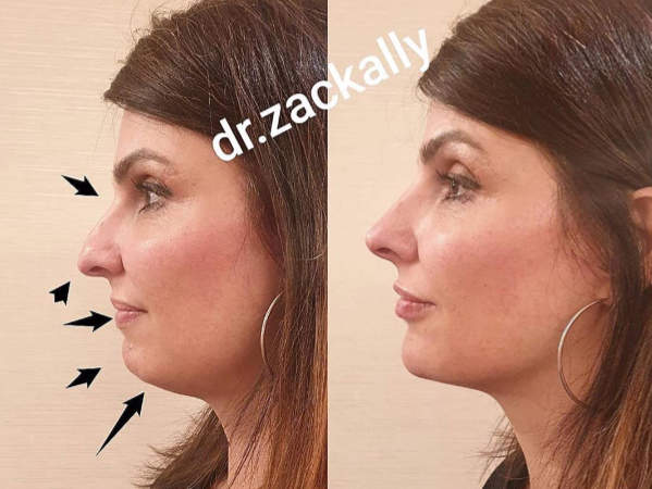 Model before and after profile harmonisation treatment