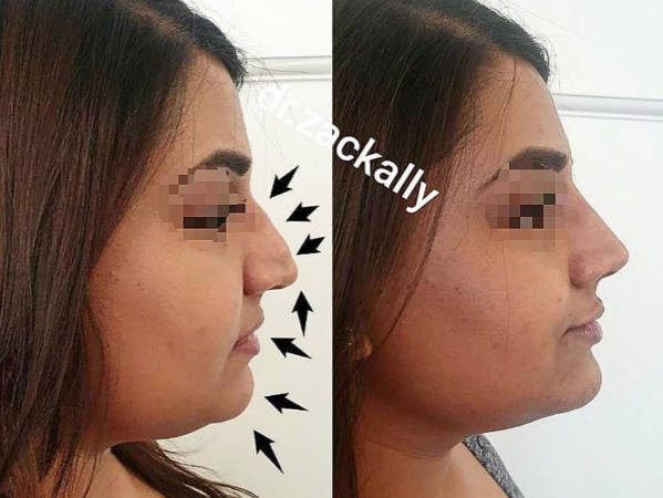 before and after of profile harmonisation treatment