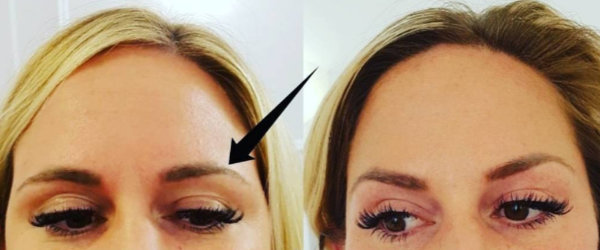 Before and after brow lift Botox treatment