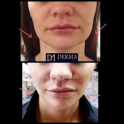 before and after jawline slimming treatment