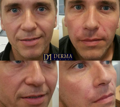 before and after nasolabial filler treatment